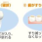 歯ぎしり2