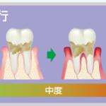 女性は歯周病になりやすい2