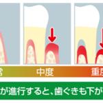 歯が抜けるサイン2