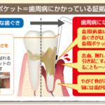 歯周ポケット1