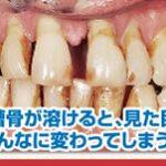 歯周病の本当の怖さ1-1