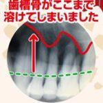 歯周病の本当の怖さ2